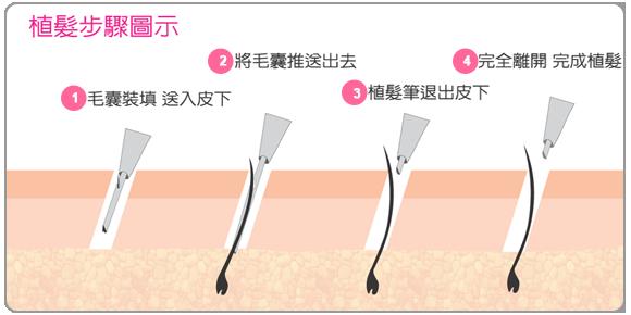 植髮手術其實是比內科療法更快、效果確實的治療雄性禿的方法。隨著技術的純熟與科技的發展,現代化的植髮手術,已經可以達到局部麻醉、少痛、少疤、巨量髮植入、術後照顧簡單、恢復快、成功率高的境界。  雄性禿/疤痕性禿髮/先天性侷限性禿髮/穩定持久的侷限性圓形禿/植眉/植鬚/植鬢角/植睫毛 中、重度的男性雄性禿、女性雄性禿;疤痕禿、不可逆的圓形禿等任何不可逆的禿髮症,皆可以植髮手術來改善禿髮問題。而植眉、植睫、植鬍、植陰毛等任何體毛的缺乏症,均可藉植毛術來治療與改善。只要是不可逆的禿髮或是任何部位永久性的脫毛,只